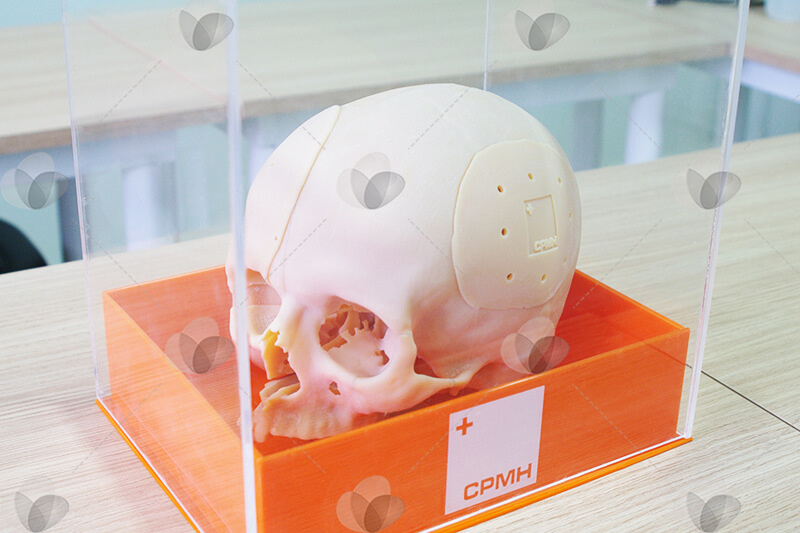 Caixa expositora em acrílico para amostras, com base e tampa